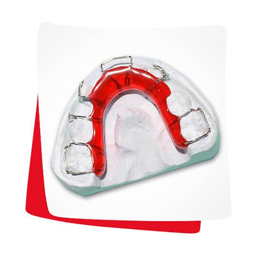 Lückenhalter - Lose Zahnspange