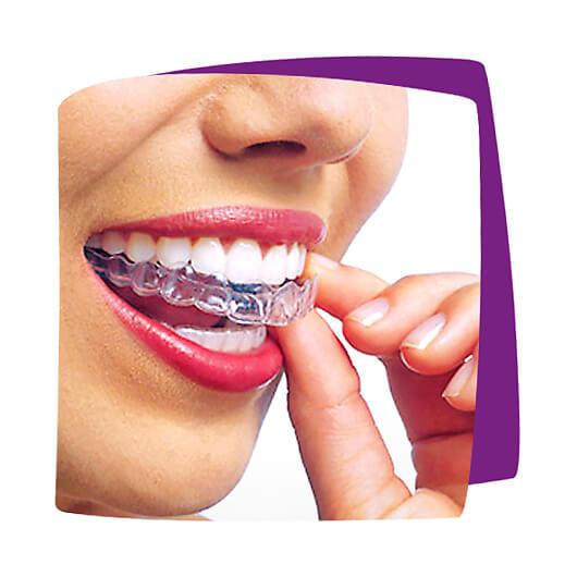 Transparente - fast unsichtbare Zahnschienen - z.B. Invisalign